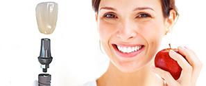 зубной протез на имплантатах