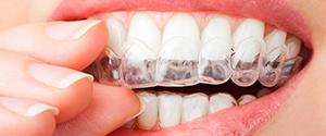 капа против стираемости зубов